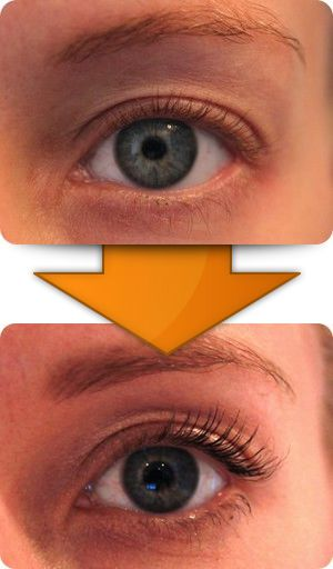 Incidence of plaquenil retinopathy