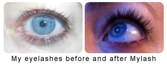 alice before and after latisse mylash